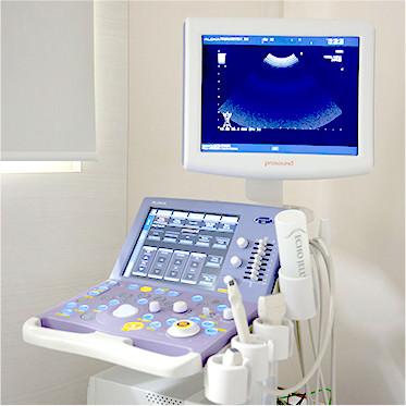 超音波(エコー)検査器